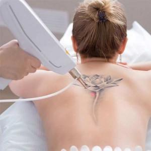 Palesta Sobre Remoção de Tatuagem  - 01 de Março ás 10 hrs